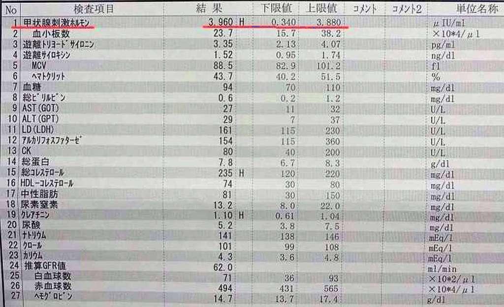 analisis sangre tiroides hipotiroidismo tsh japon