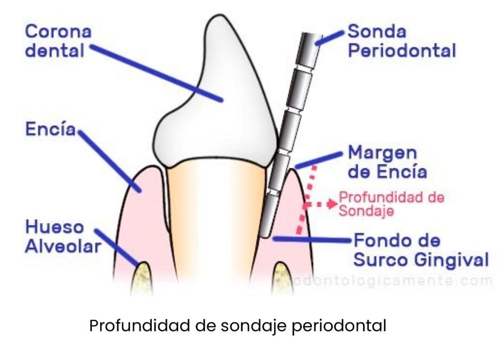 sondaje periodontal encia
